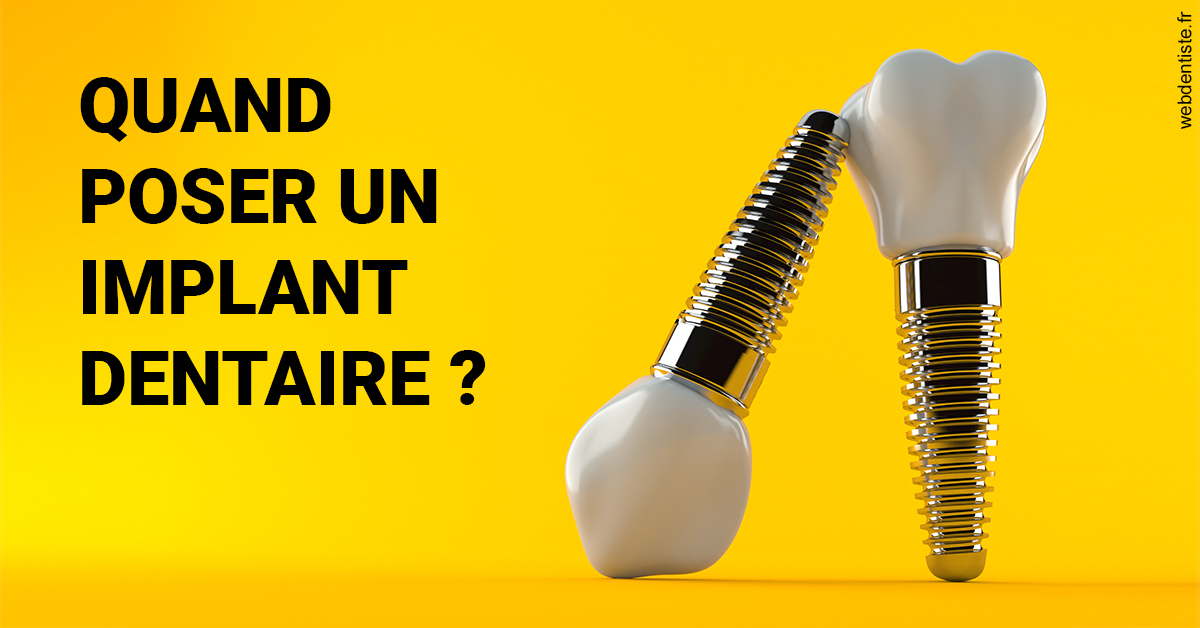 https://www.cabinetdocteursrispalmoussus.fr/Les implants 2