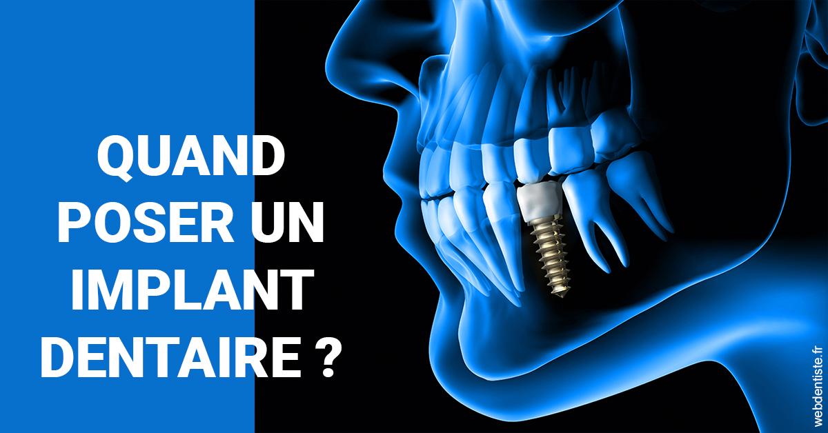 https://www.cabinetdocteursrispalmoussus.fr/Les implants 1